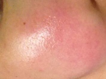 脸部皮肤过敏应怎么办好
