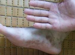 手足癣疾患呈现的症状特点