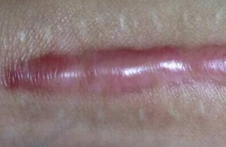 怎样的预防术后疤痕增生