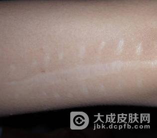 疤痕的处理方法有哪些