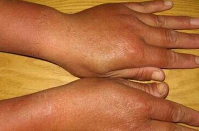 过敏引起的皮炎怎么办