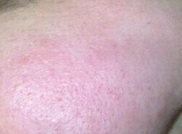 皮肤过敏治疗时期注意什么