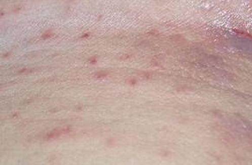 皮肤瘙痒对人体有什么危害