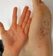 手足癣主要有什么症状体现