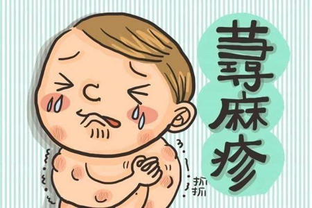常州皮肤科解答荨麻疹会传染吗