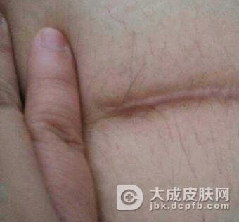 疤痕修复需要注意什么呢