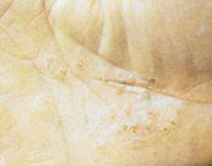 患上手足癣会呈现的症状表现特征