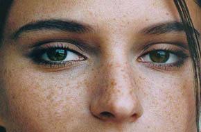 治疗青少年面部雀斑的方法有哪些