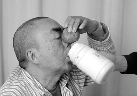 酒渣鼻会给人带来怎样的危害
