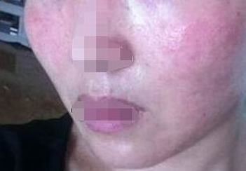 皮肤过敏的症状病因