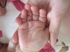 手足癣有什么主要症状当科学化了解
