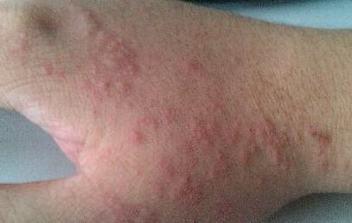 脱敏治疗或许根治皮肤过敏吗
