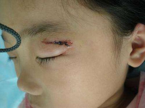 疤痕增生初期怎样的预防