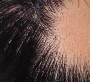 头发斑秃怎么办