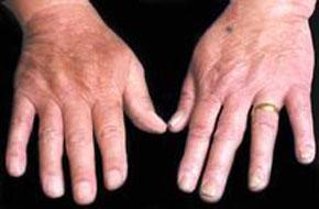 手癣症状是什么,怎么治疗
