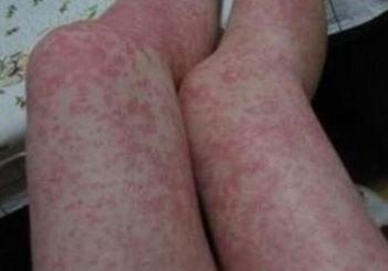 皮肤过敏的症状应要如何治疗