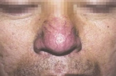 常州皮肤病专科门诊部螨虫检查多少钱 得了酒糟鼻要做什么检查