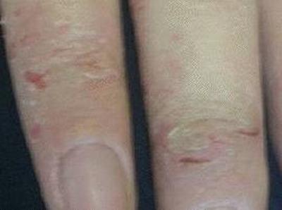 导致过敏性皮炎的物质有哪些