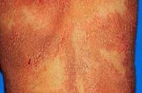 湿疹的治疗方法哪种好