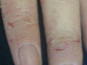 脂溢性皮炎的常见危害和原因