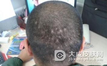 斑秃有哪些具体症状表现