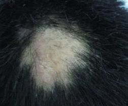 斑秃的原因及治疗分析 盘点引起斑秃几种疾病