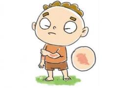 荨麻疹会传染吗