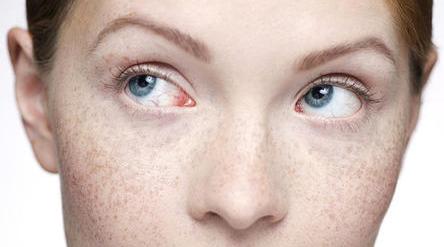 黄褐斑疾患进行医治的护理办法