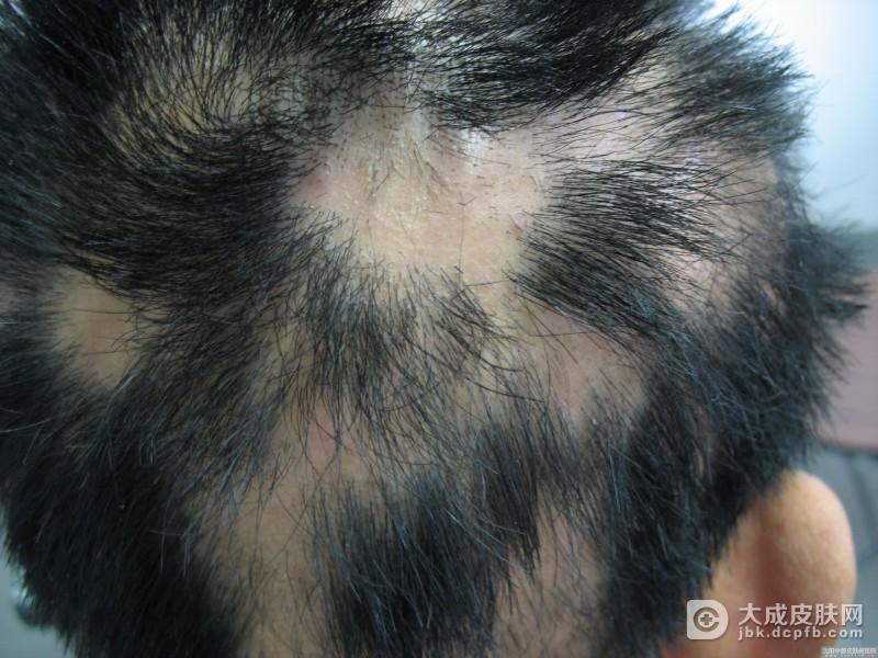 斑秃这种疾病是如何患上的