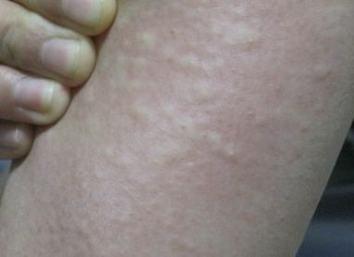 葡萄籽可改进皮肤过敏